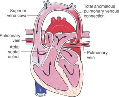 Anomalous infusion of the pulmonary veins